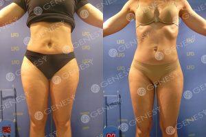 Sovrappeso donna