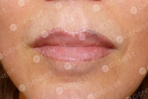 Tatuaggio estetico labbra