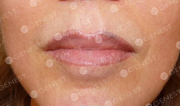 Tatuaggio estetico labbra - Prima