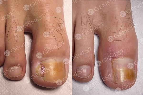 La pelle che si stacca su piedi di gambe se non è un fungo
