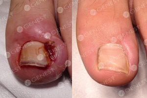 Le unghie terribili un fungo come trattare