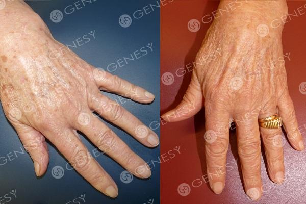 Decolorazione della pelle combinata