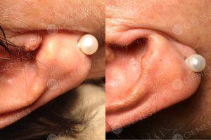 Asportazione laser neoformazione orecchio
