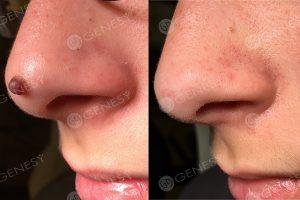 Asportazione laser nevo naso