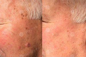 Eliminazione laser macchie e fibroma