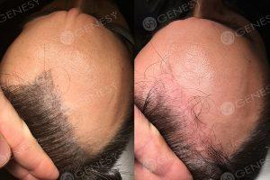 Eliminazione laser tricopigmentazione