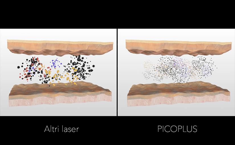 Pico_laser