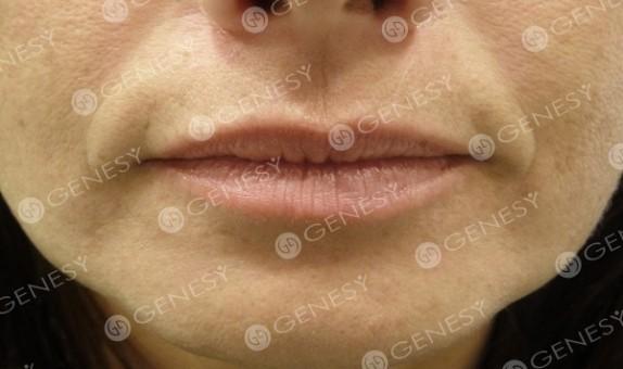 Filler labbra - prima