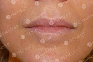 Tatuaggio estetico labbra - Dopo