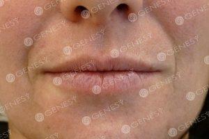 Ringiovanimento labbra - prima