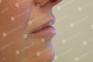 Filler labbra - dopo