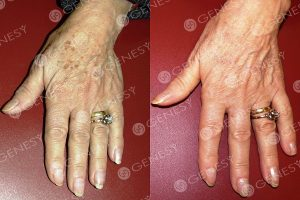 Macchie mani (81 anni)