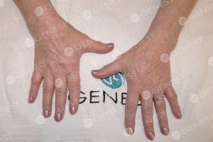 Macchie mani - dopo (76 anni)