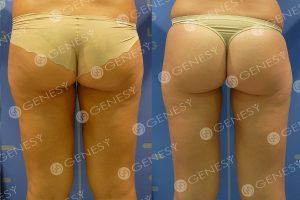 Cellulite