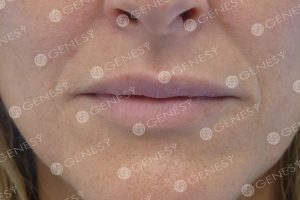 Refresh labbra - dopo