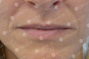 Refresh labbra - prima
