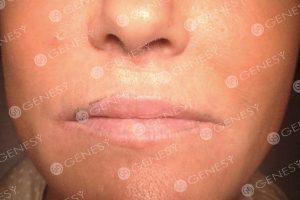 Tatuaggio estetico labbra - Durante