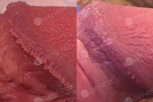 Papule perlacee genitali