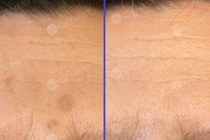 Rimozione laser lentigo