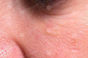 Ringiovanimento non chirurgico - occhiaia dopo