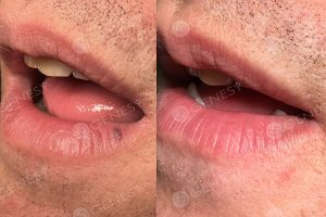 Angioma bocca - prima e dopo