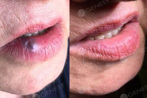 Angioma labbra - prima e dopo