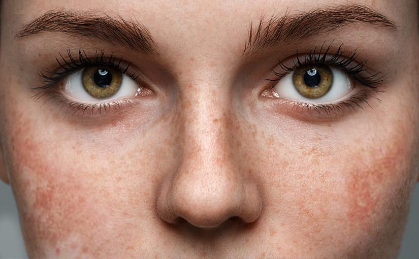 Melasma e macchie della pelle