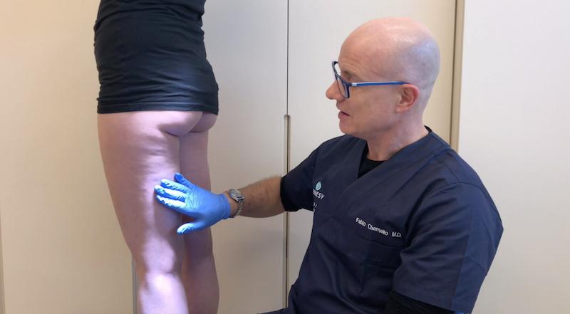 Valutazione cellulite