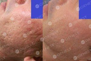 Cicatrici acneiche 4800