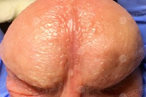 Papule perlacee dei genitali 5160