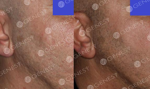 Cicatrici acneiche 4798