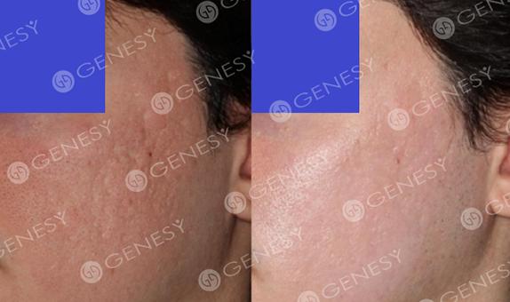 Cicatrici acneiche 4799