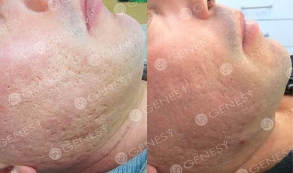 Cicatrici acneiche 4801