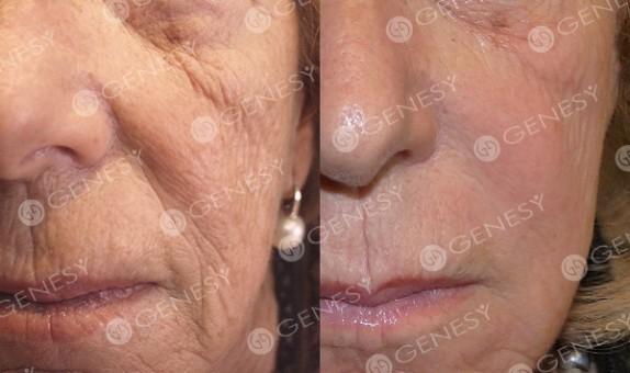 Ringiovanimento del volto 5017