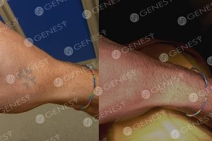 Rimozione tatuaggi laser 5337