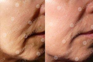 Ringiovanimento del volto 5015