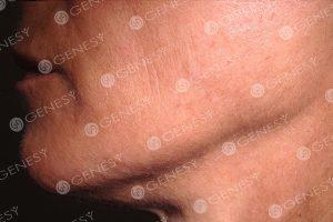 Ringiovanimento del volto 5034