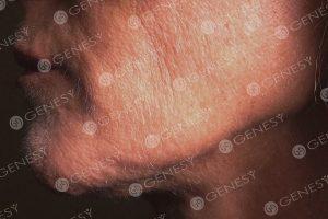 Ringiovanimento del volto 5033