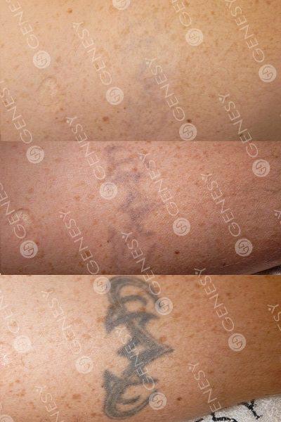 Rimozione tatuaggi laser 5341